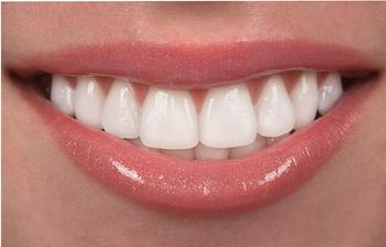 Sedación para implantes dentales