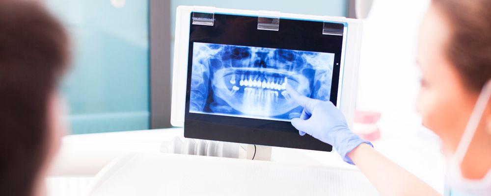 Mitos y leyendas sobre los implantes dentales