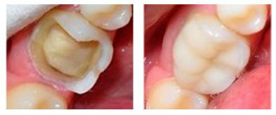 reconsruccion dental