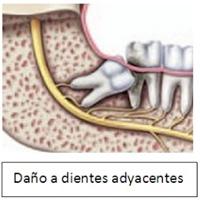 Daño a dientes adyacentes