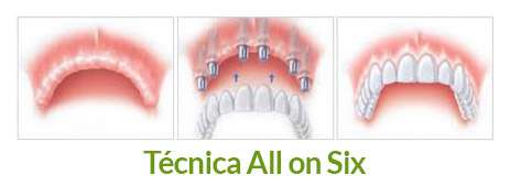 tecnica-colocacion-implantes-dentales-all-on-six