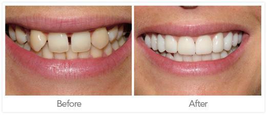 coronas dentales5