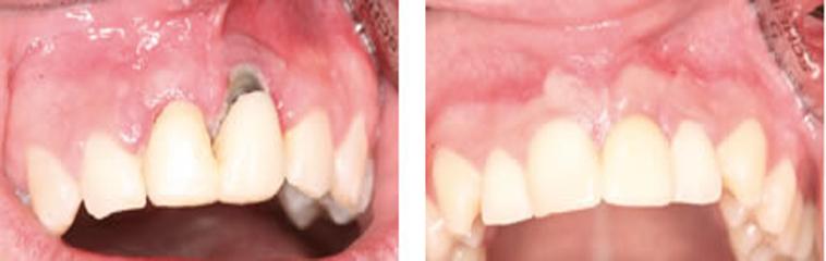 Cuanto dura un implante dental dentisalut - Cuanto dura la mala suerte ...