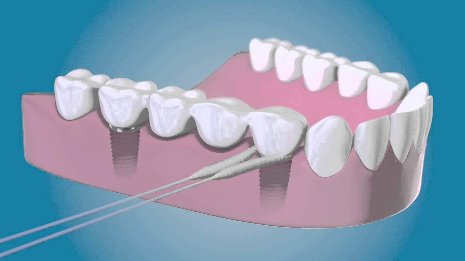 Cuidado De Los Implantes Dentales Dentisalut