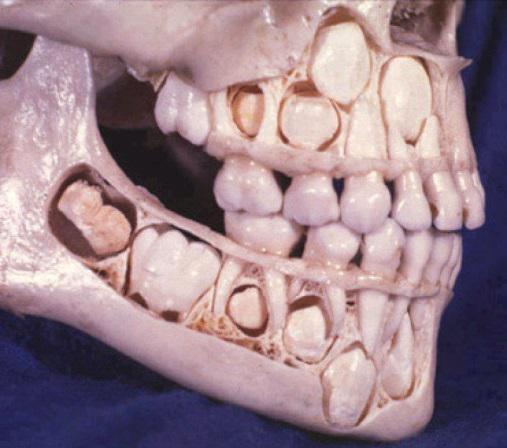dientes de leche2