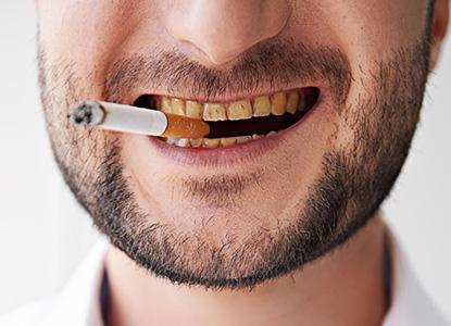 como eliminar manchas de tabaco en los dientes