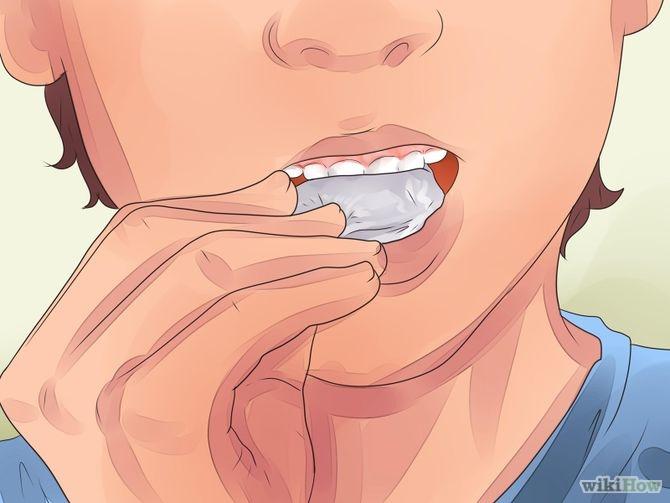 Extracción de una muela: sangrado de encías