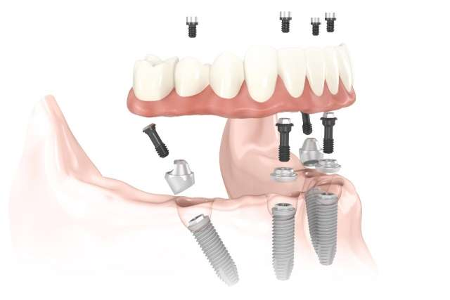 Implantes dentales Barcelona: técnica All-on-4