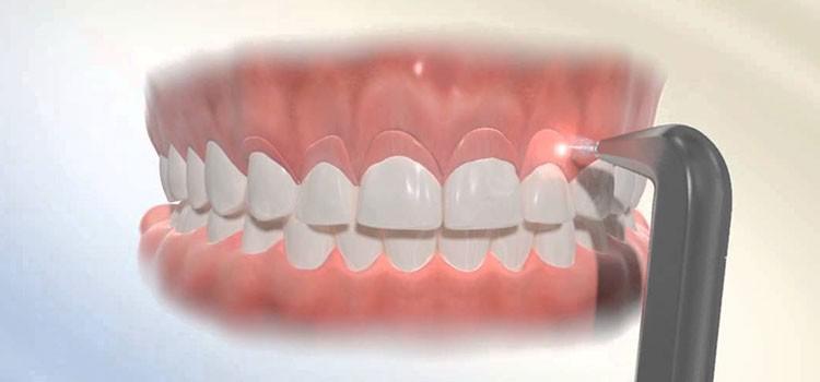Sonrisa gingival, solución