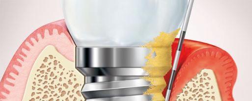 urgencias implantes dentales4