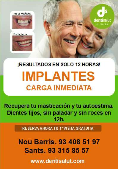 Implantes dentales en 12 horas