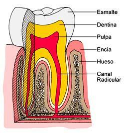 Qué se siente tras una endodoncia