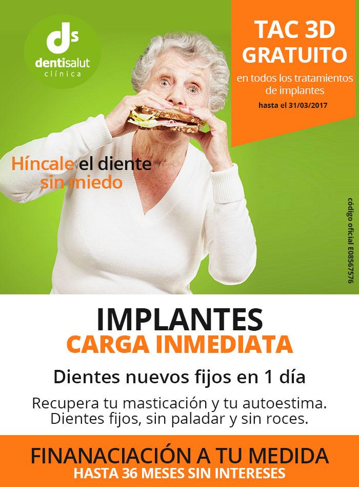 Promoción Implantes dentales Carga Inmediata Barcelona
