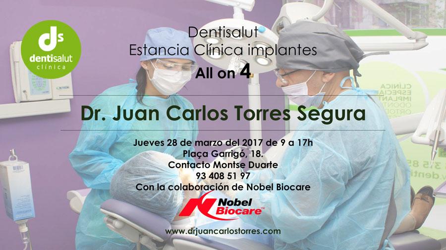 Estancia clínica: Implantes dentales All-on-4