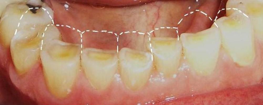 ¿Por qué tengo desgaste dental?