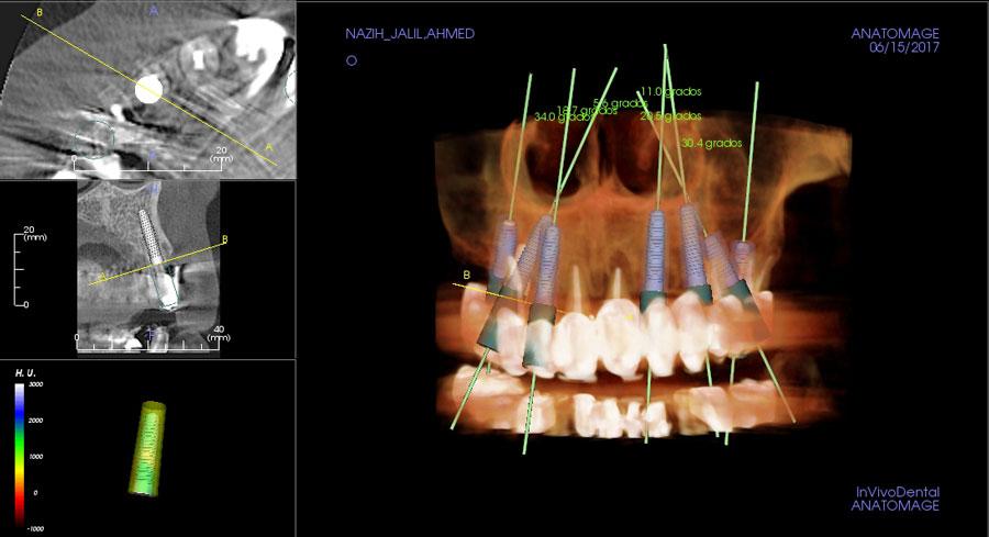 Imagen 3D de los implantes dentales