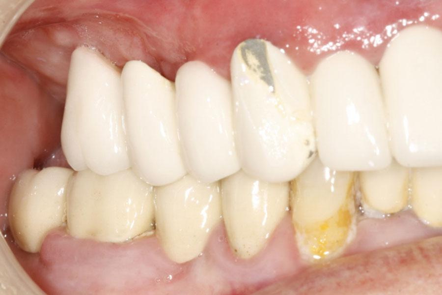 Implantes dentales de carga inmediata, antes de la intervención