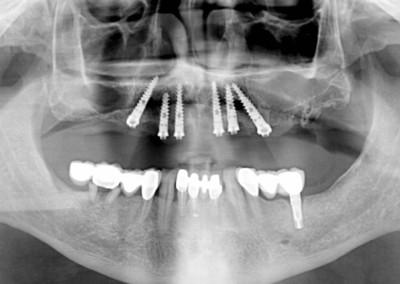 Radiografía final