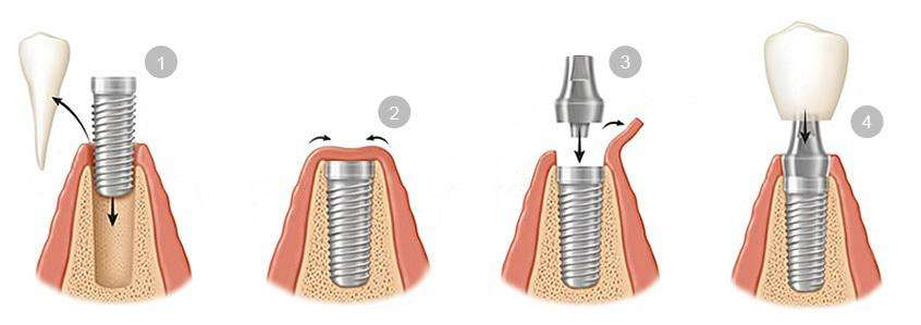 Proceso colocación implantes dentales