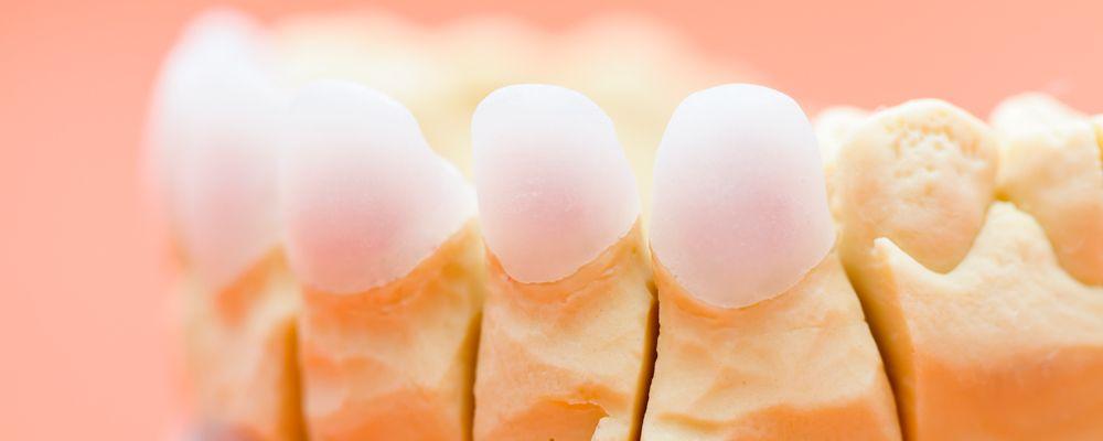 ¿Qué es el zirconio y para qué se utiliza en odontología?