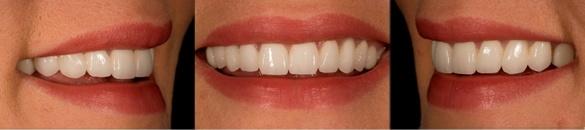 ¿Sabes que es el zirconio y por que se utiliza en odontología?
