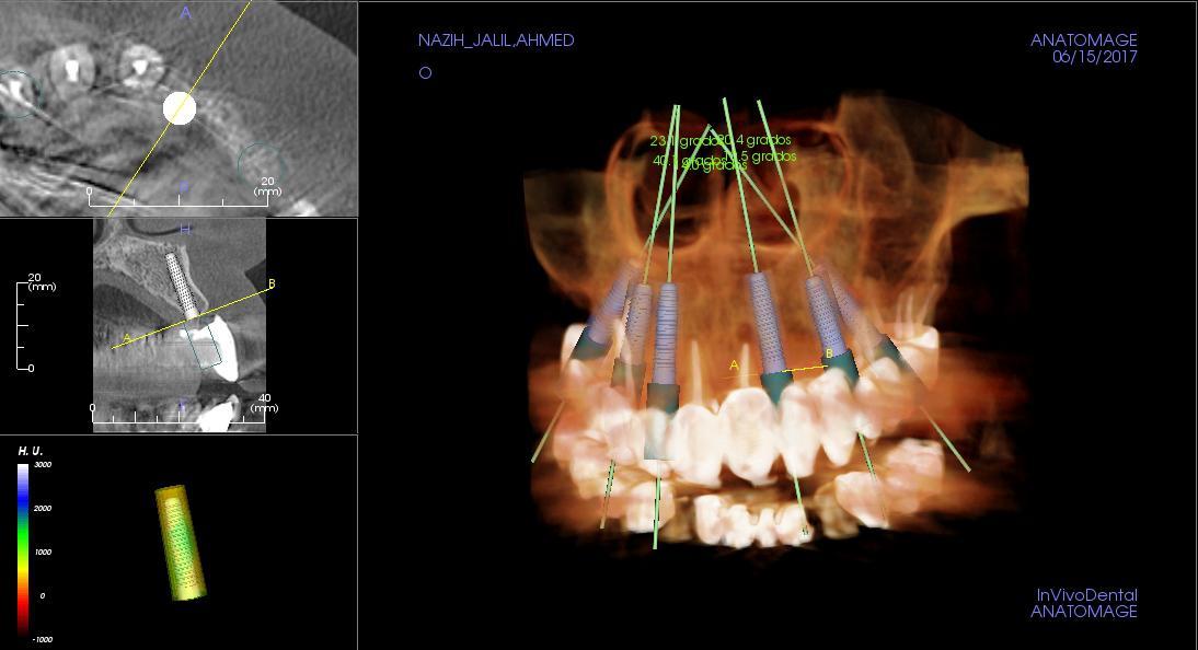 Clínica de implantes dentales en Barcelona