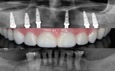 Dentisalut, Clínica especializada en implantes dentales en Barcelona