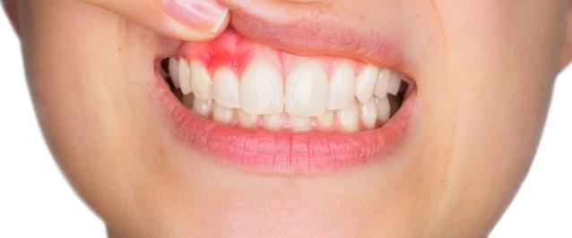 Causas de las enfermedades de las encías