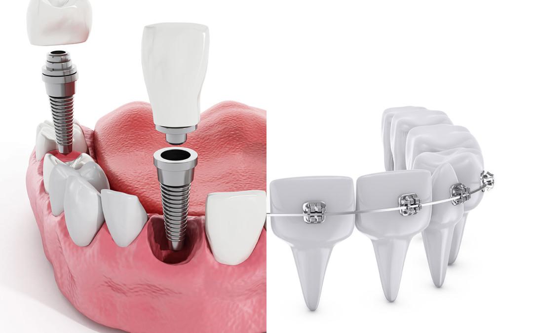 Implantes dentales y ortodoncia