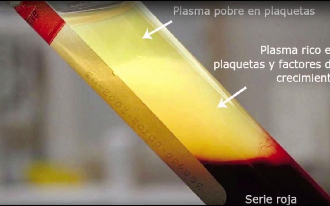 Mejoramos el proceso de recuperación de nuestros tratamientos gracias al Plasma Rico en Fibrina