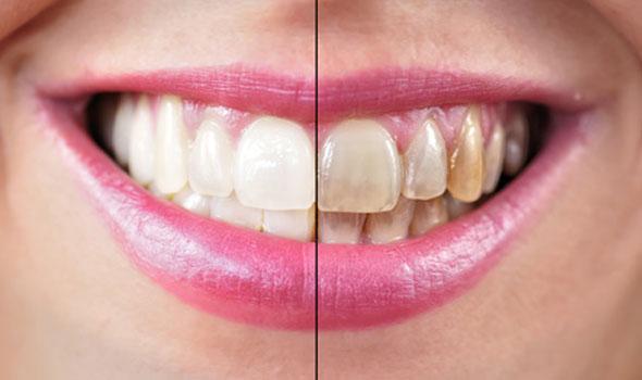 ¿Cuándo poner carillas dentales?