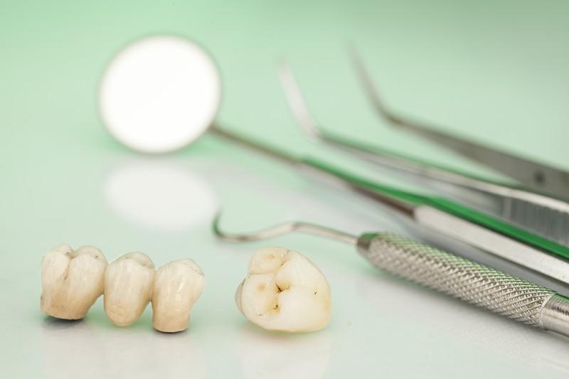 ¿Llevas coronas dentales?