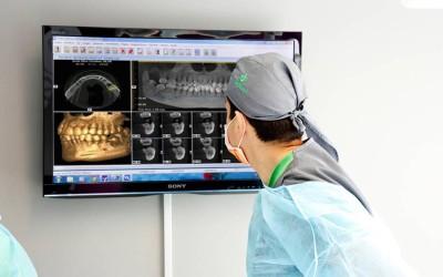 Planificación digital en implantología