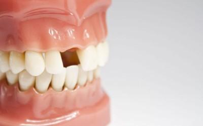 Las causas de la pérdida dental