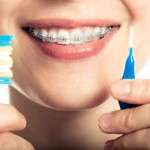 Higiene Dental Brackets