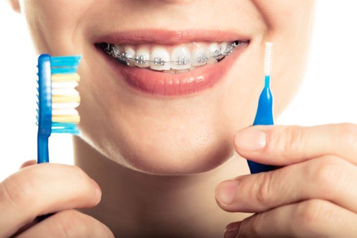 ¿Se me pueden caer los brackets al cepillarme los dientes?