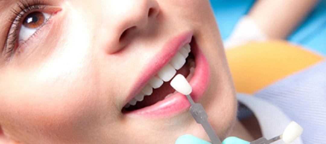 ¿Cuánto tiempo duran las carillas dentales?