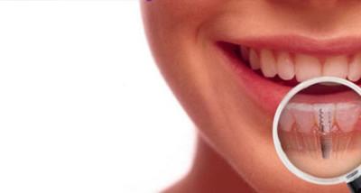 ¿A partir de qué edad me puedo poner implantes dentales?