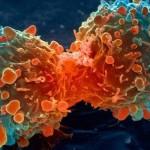 COSAS QUE NO SABIAS DEL CANCER ORAL