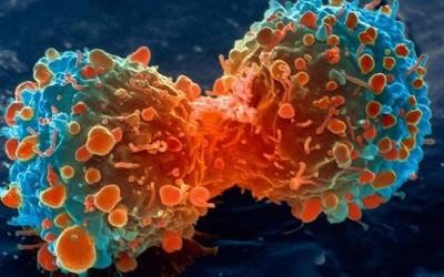 Cosas que no sabías del cáncer oral