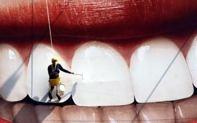 Obsesión por los dientes blancos: La blancorexia