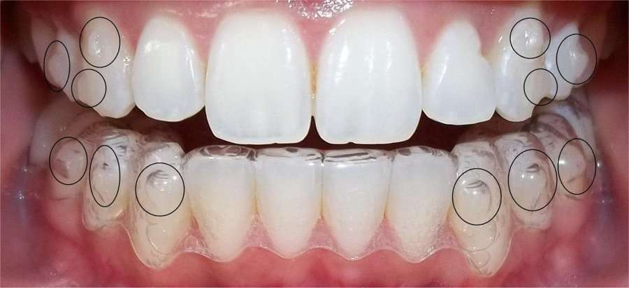 ¿Invisalign duele mucho?