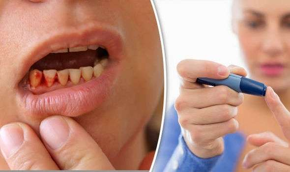 Asociación entre la diabetes y la enfermedad periodontal