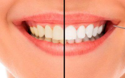 ¿Qué sabes del blanqueamiento dental?