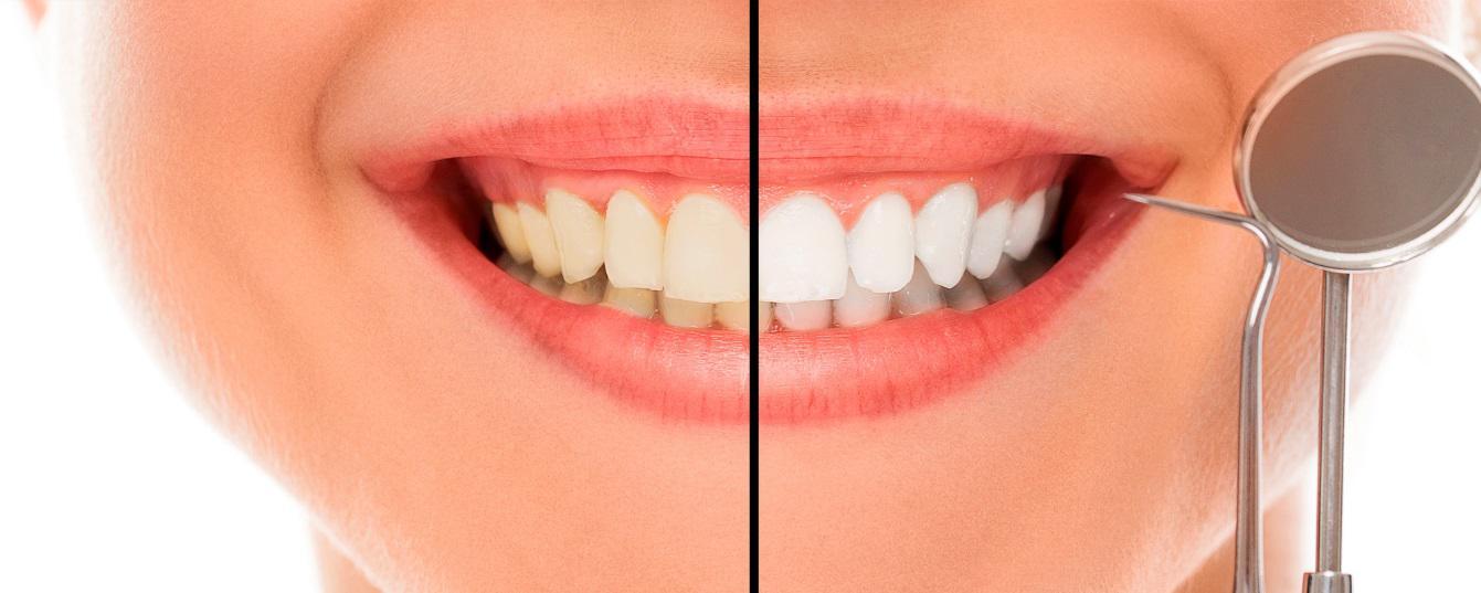 información blanqueamiento dental