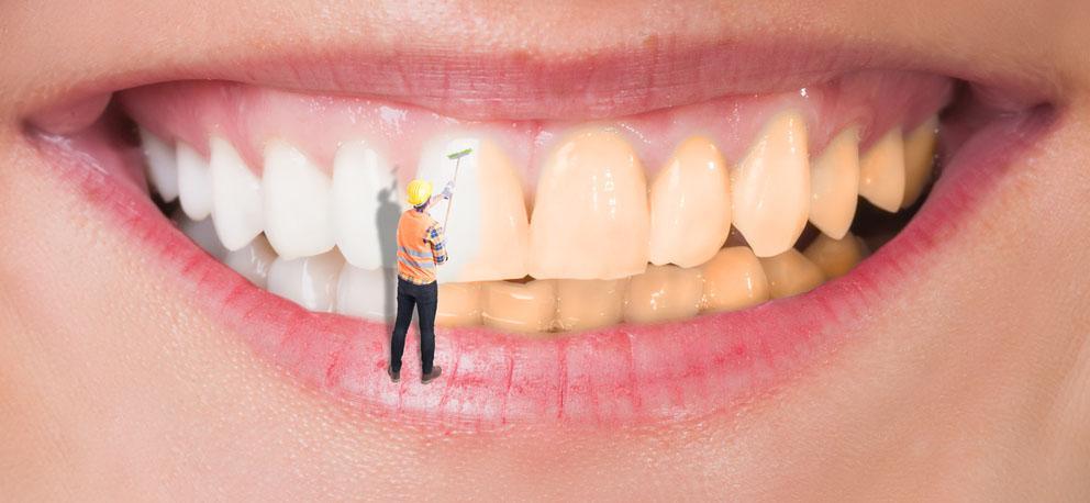 ¿Se puede blanquear una funda sobre implantes?