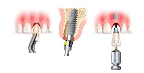 ¿Cuánto tiempo funcionan los implantes dentales?