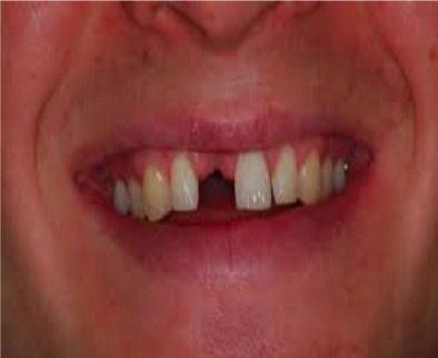 Cuidados después de una extracción dental