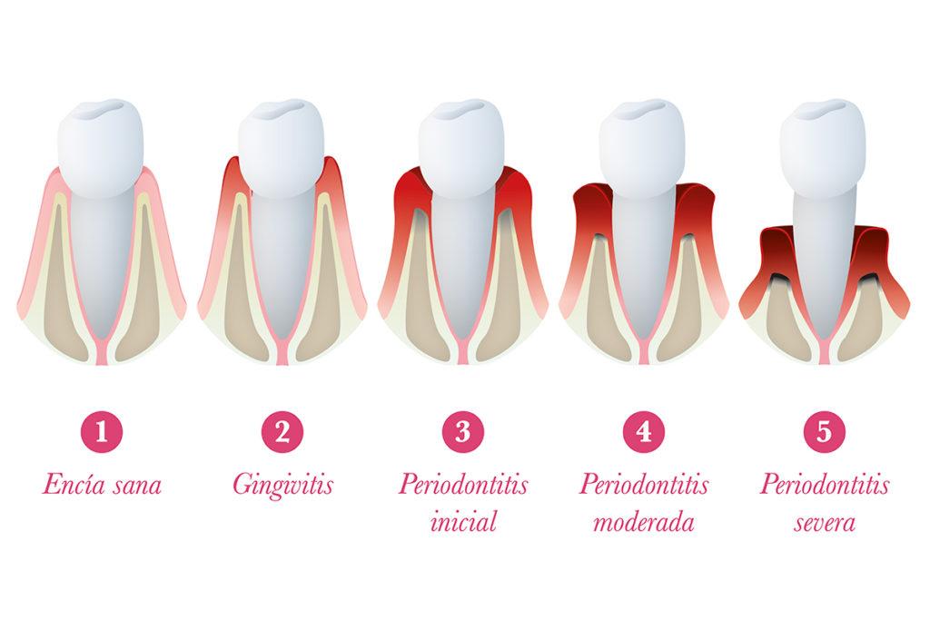 Síntomas de la enfermedad de la periodontitis: