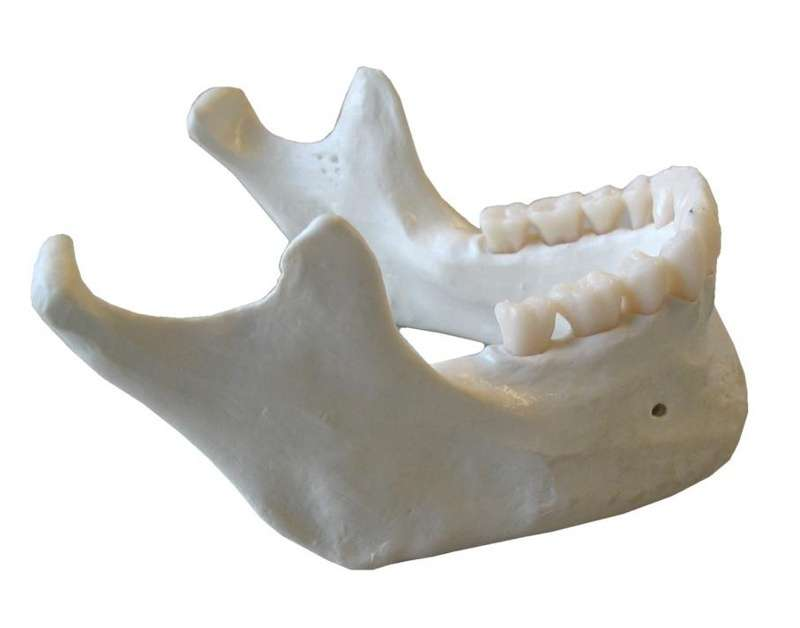 Osteoradionecrosis en maxilar y mandíbula